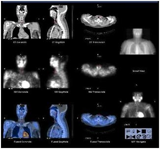 dual modality imaging with spect ct