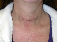 Scar After Thyroid Surgery Minimally Invasive Thyroid Surgery