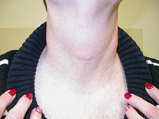 Scar After Thyroid Surgery Minimally Invasive Thyroid Surgery Alexander Shifrin Md Www Thyroid Surgeon Org