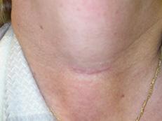 Scar After Parathyroid Surgery Www Parathyroid Surgery Org